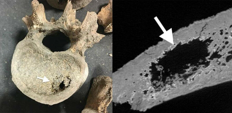 Left: Excavated medieval bone from spine showing cancer metastases (white arrow)